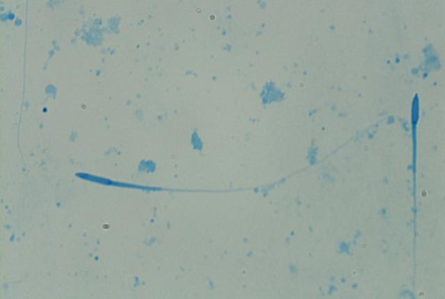 White-bellied Tree Pangolin 4