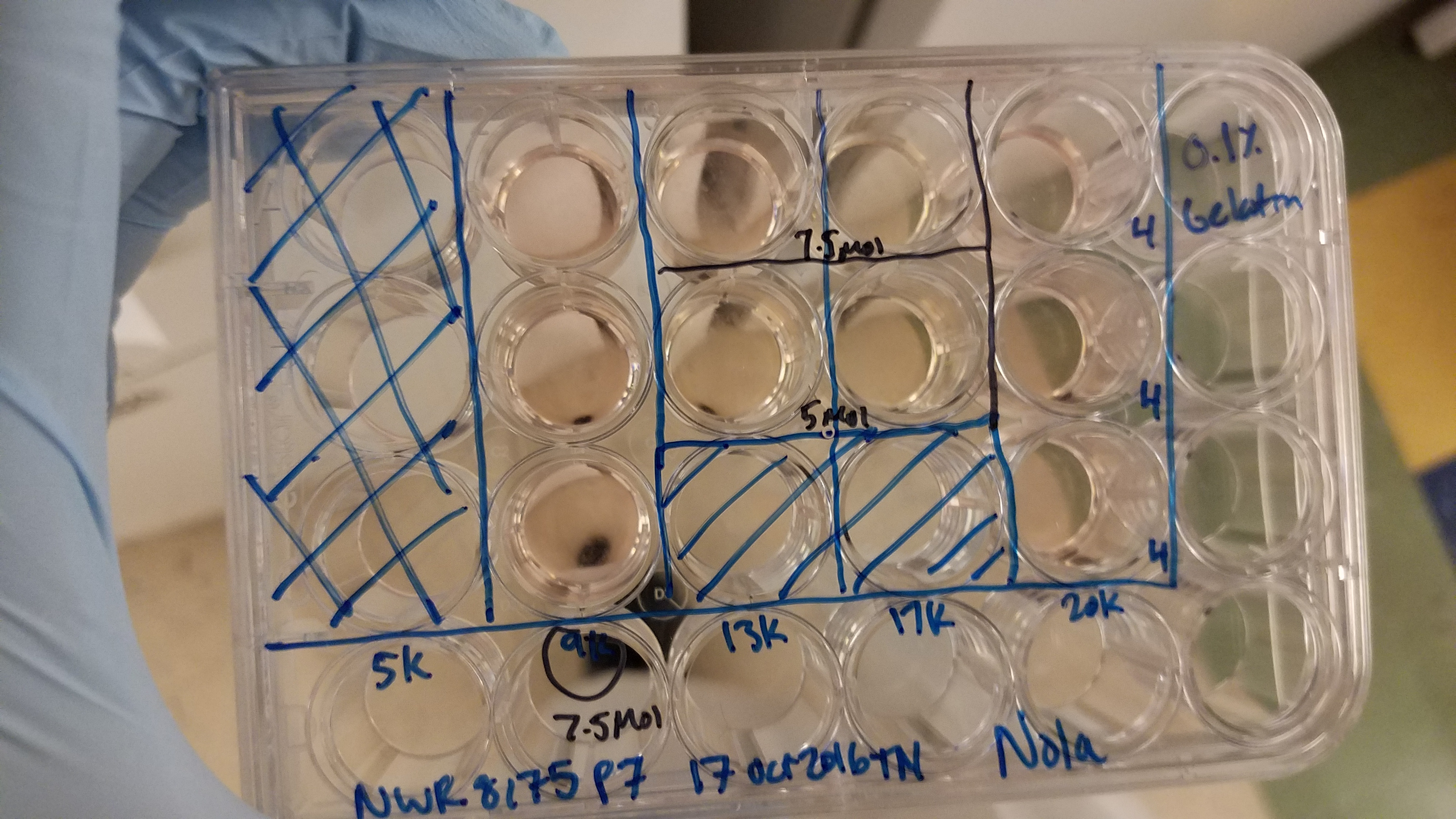 The tissue culture plate contains Nola's (pictured above) fibroblasts (skin cells) that we are turning into stem cells using a method called reprogramming. It's not the most glamorous photo but it does encompass what we are doing in the lab.