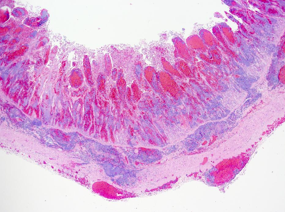Histologic image of intestine from a Grant's gazelle infected with Y. pseudotuberculosis. There is extensive hemorrhage and bacterial invasion.