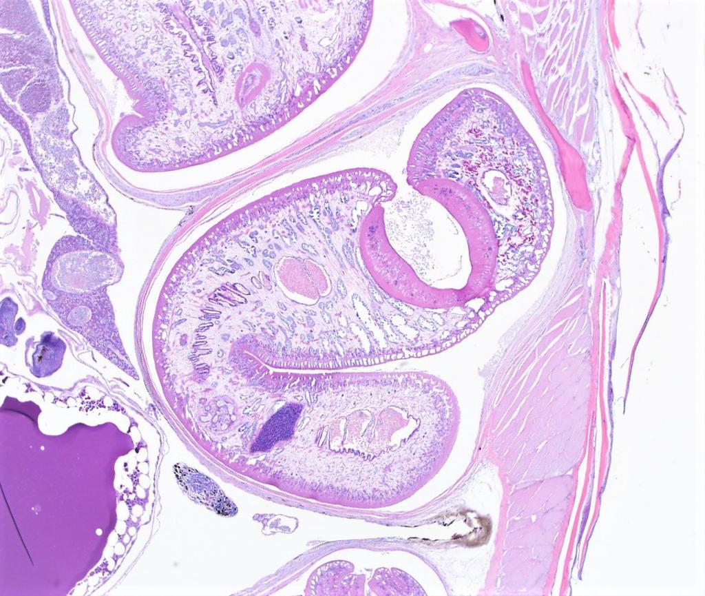 Photomicrograph of a larval trematode within the body wall of the mosquitofish.
