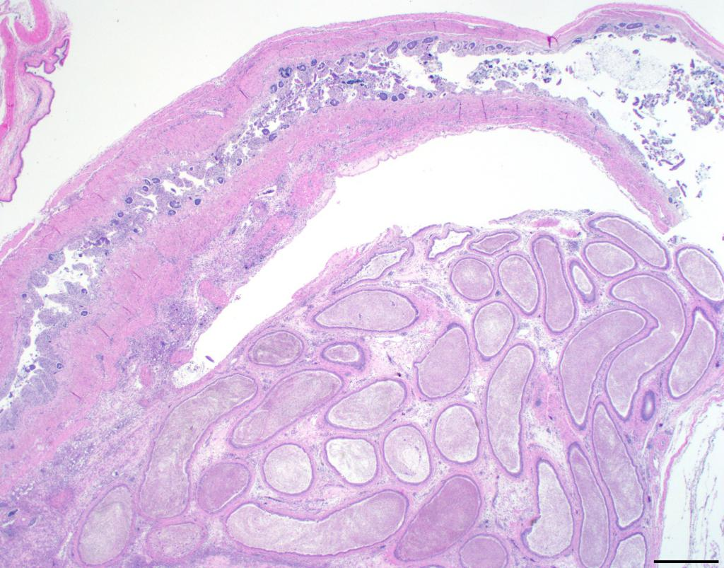 Figure 3 – Profiles of the mass of tubules that makes up a seminal glomus are seen in the lower part of this image, with a section of colon leading to cloaca running along the top and left.