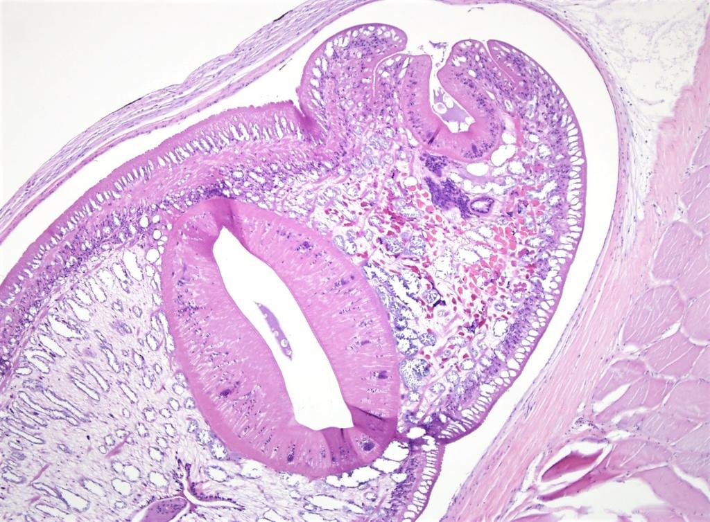 Higher magnification view of one of the larval trematodes with a large central sucker (pink oval donut shape) and another sucker at the anterior end (top).