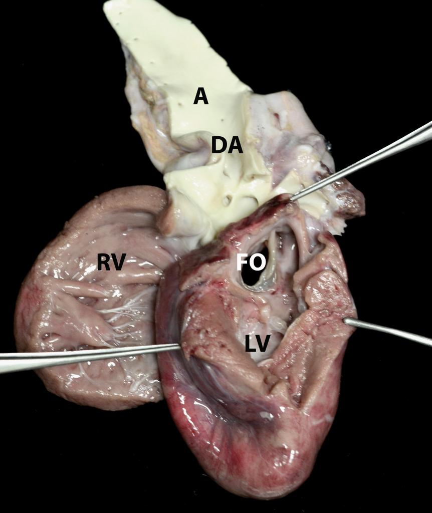 On the left side of the heart, the chambers, especially the left ventricle (LV), are much smaller than they should be (under-developed or hypoplastic), and there is no outflow tract from the left ventricle. The hole on this side (FO) is in the left atrium.