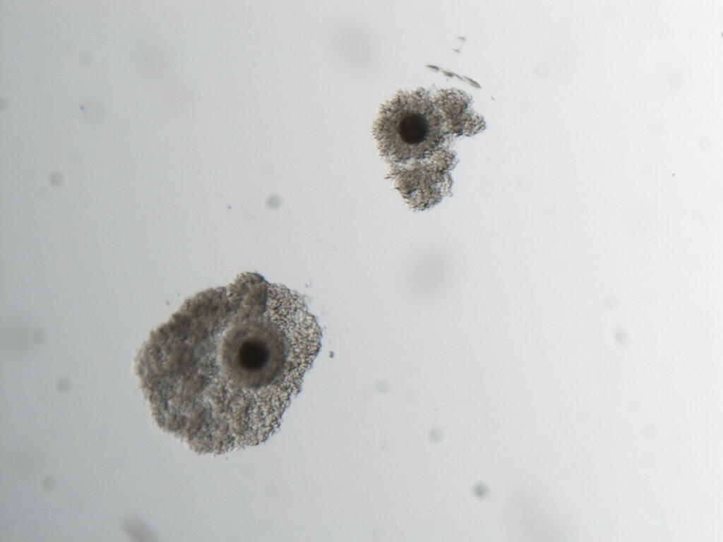 Southern white rhino mature oocyte. Maturation is often achieved in vitro by placing oocytes in maturation medium for a set amount of time. Maturation is indicated by extrusion of a 'polar body' (small cell at the 5:30 o'clock position).This is a necessary step in the in vitro fertilization process and indicates that the oocyte is capable of being fertilized.