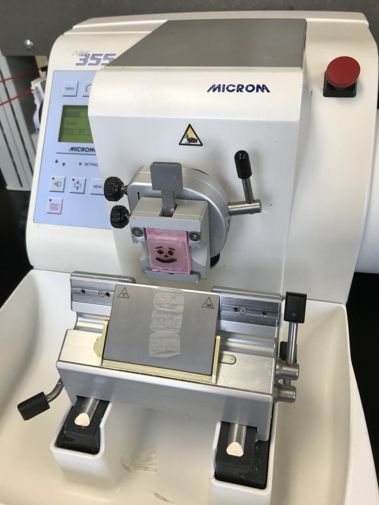 Liver tissue now in a solid paraffin block held in place in a microtome. As the very sharp blade of this instrument moves against the face of the block, 5-micron thick ribbons are produced.